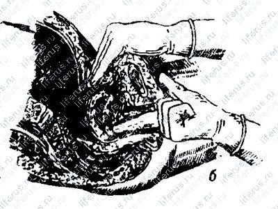гинекологического массажа